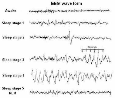 Pin by Keys Keys on EEG | Sleep medicine, Brain waves, Psychology facts